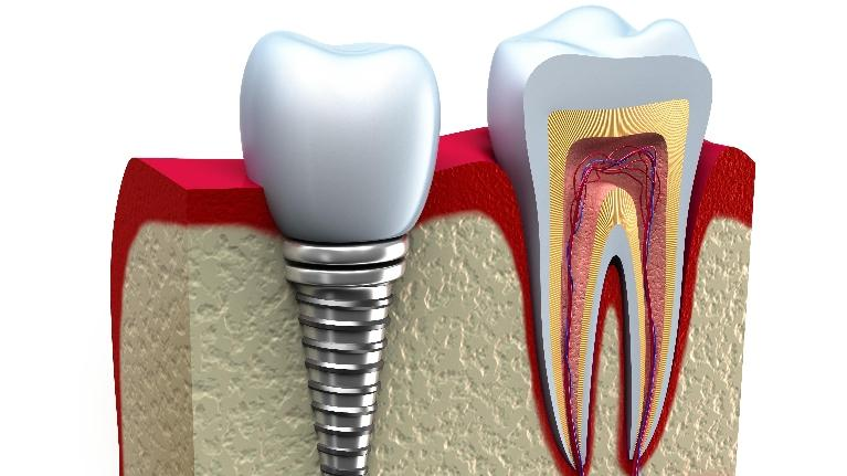 Dental Implant | Lake Erie Dental