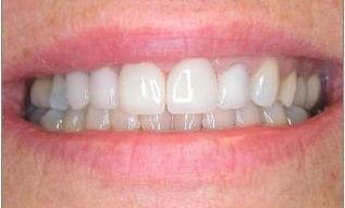 Combination-of-Implants-and-Crowns-After-Image