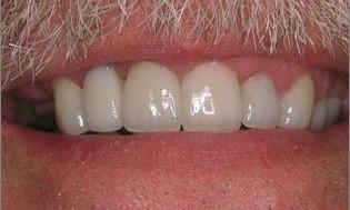 Crowns-and-Tissue-Recontouring-After-Image