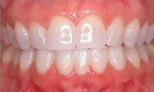 Lower-Anterior-Bridge-and-Veneers-After-Image