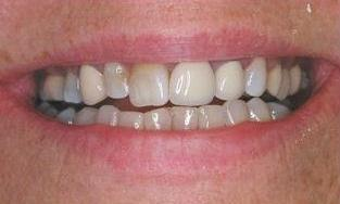 Combination-of-Implants-and-Crowns-Before-Image