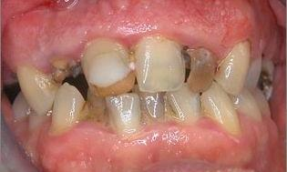 Crowns-and-Tissue-Recontouring-Before-Image