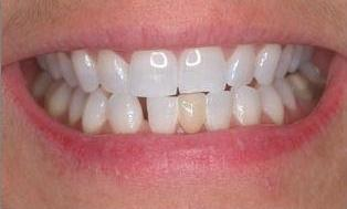 Lower-Anterior-Bridge-and-Veneers-Before-Image